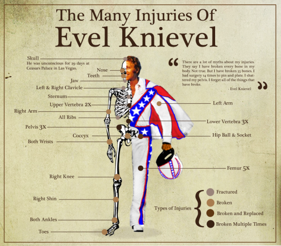 the-many-injuries-of-evel-knievel1